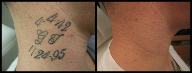 Tattoo Removal Before and After Photos From ReThink the Ink Denver