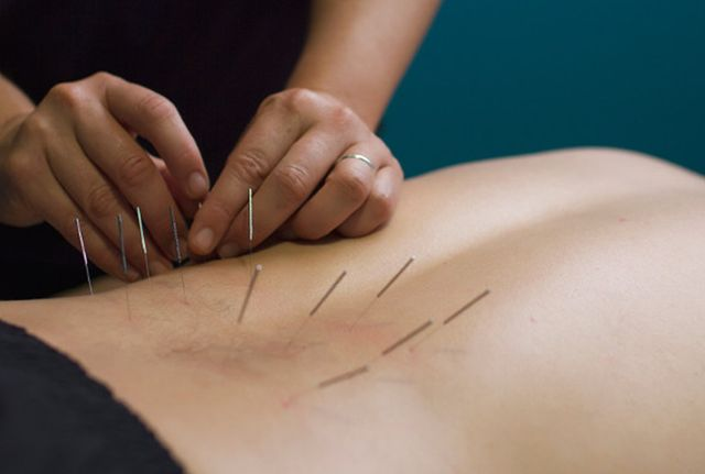Acupuncture One Wellness