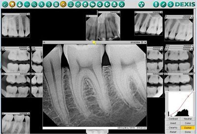 Digital Dental X-Rays in Midtown Manhattan, NY | NY Smile Specialists