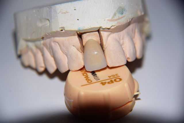 protesi dentale in fibra di vetro