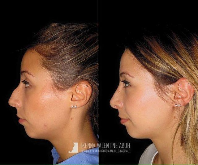 maxillo-facciale