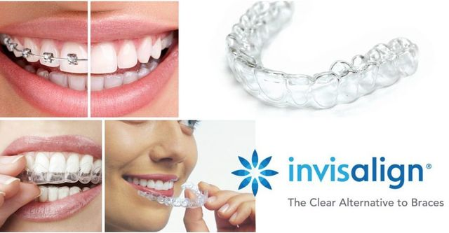 Wansbeck dental spa and implant clinic