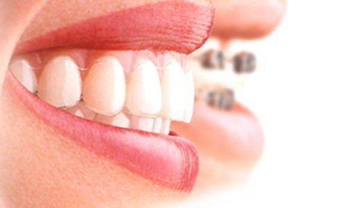 Teeth straightening treatments
