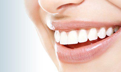 braces design