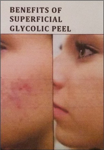 before and after peeling