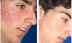 before and after glycolic acid peel