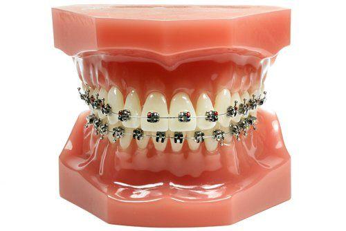 Modello odontotecnico dentale