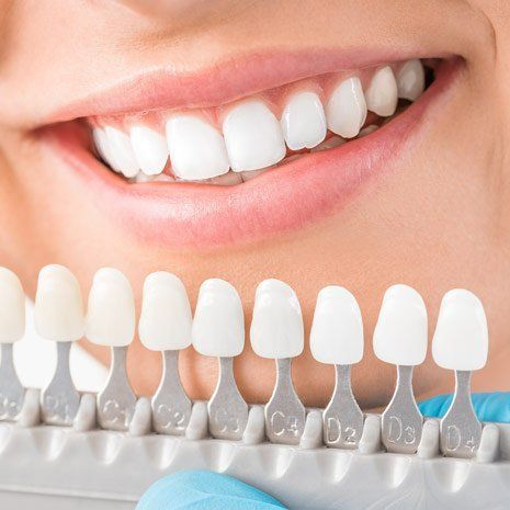 woman's smile with teeth colour  samples