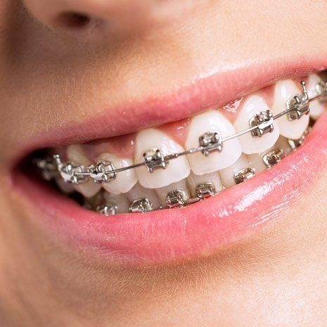 close up of smile with braces on teeth