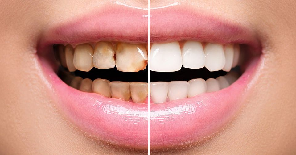 What Are Dental Veneers? Everything to Know About Cosmetic Dentistry
