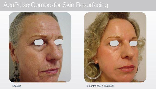 Laser skin therapy   Central Coast   Capricorn Skin Care Centre