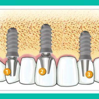 Grafico esplicativo di  implantologia dentale