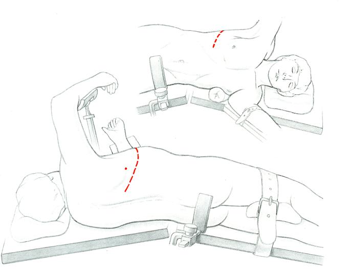 Disegno di un paziente di fianco sul lettino