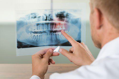 Odontoiatra analizza una lastra