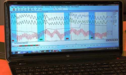 Polygraph chart during polygraph test
