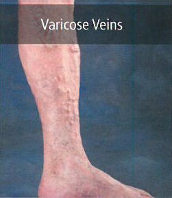 Candidate for vein surgery in Lincoln, NE