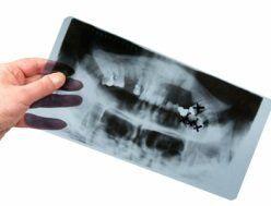 Radiografia di una bocca