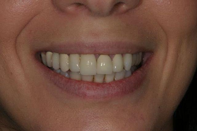 Photo Of Customer Before Dental Work