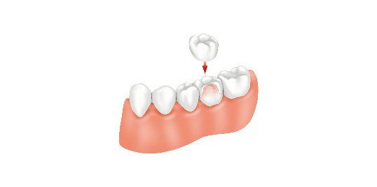 Photo Of Dental Crowns