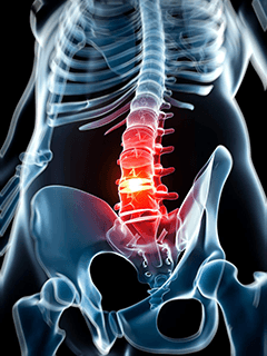 chiropractic treatment Riverhead, NY