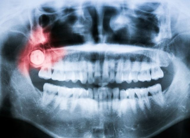 X-Ray for Wisdom Tooth, Oral Surgery in Naples NY