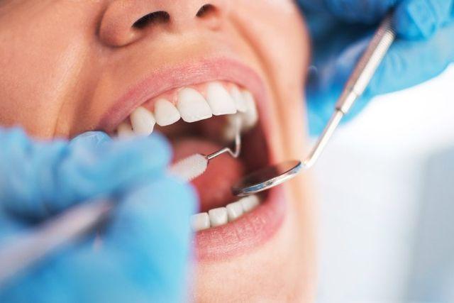 Dental Exam for Oral Surgery, Canandaigua NY
