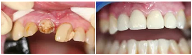 Cosmetic Crowns
