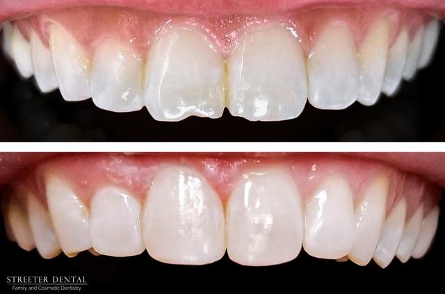Cosmetic Dentist In Colorado Springs Co Streeter Dental