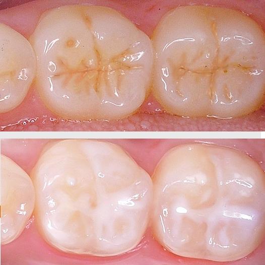 Dental Treatments Colorado Springs Co Streeter Dental