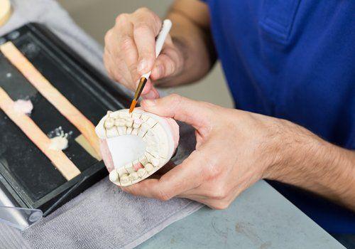 medico mentre colora in rosso alcuni denti di una impronta dentale