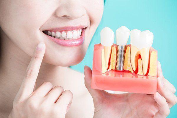 una donna sorridente con il modello di una protesi dentaria