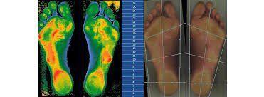 piedi agli infrarossi