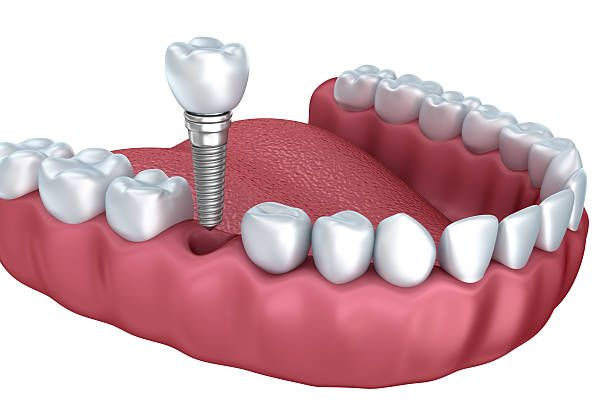 Example of Dental Implants in Columbia, MD