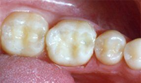 After Dental Bridge Photo in Columbia MD