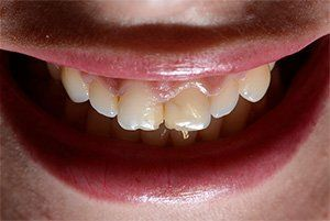 Before Dental Bridge Photo in Columbia MD