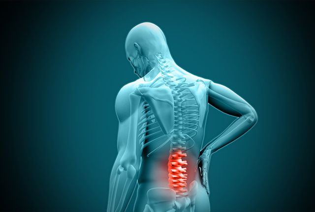 3D image of back pain