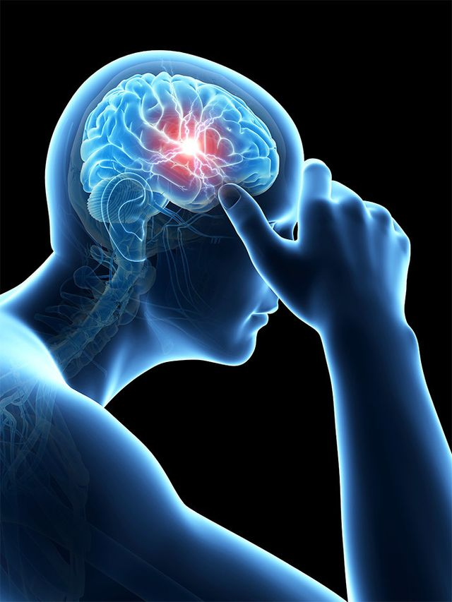3D image of person with headache pain