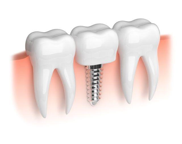 Dental Implants Houston, TX
