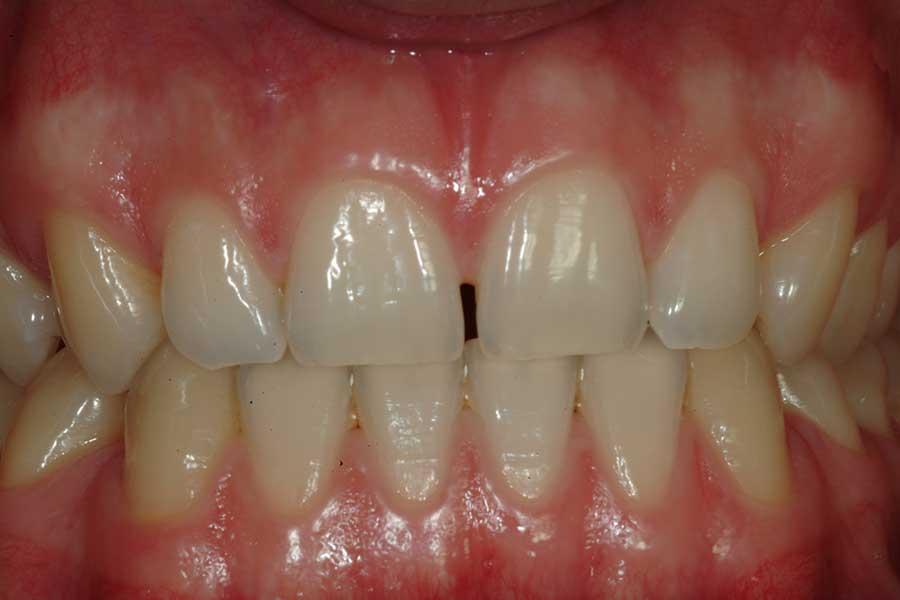 sbiancamento denti condizione iniziale