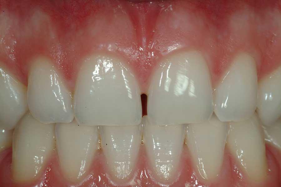 sbiancamento denti risultato finale
