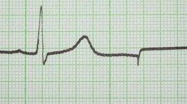 elettrocardiogramma, holter dinamico, prova da sforzo