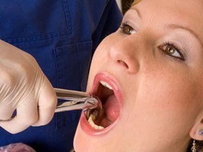 estrazione denti Lecco