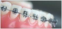 apparecchi correttivi denti