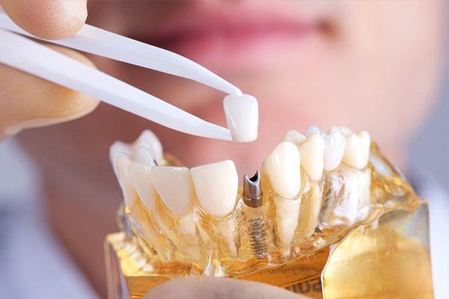 Restorative & Cosmetic Dentistry Boston MA - Dental Implants Boston