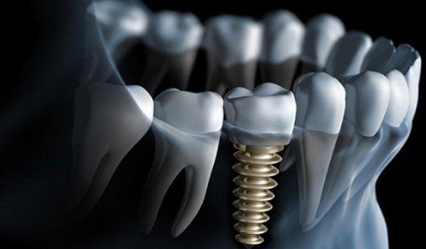 vista tridimensionale dei denti di cui uno con una vite