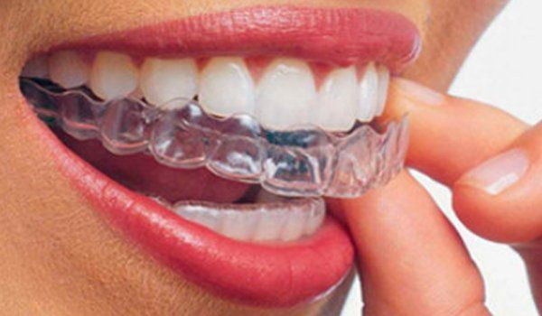 la bocca aperta di una donna con un apparecchio Invisalign