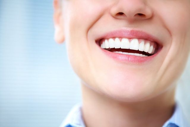 dental implants West Houston