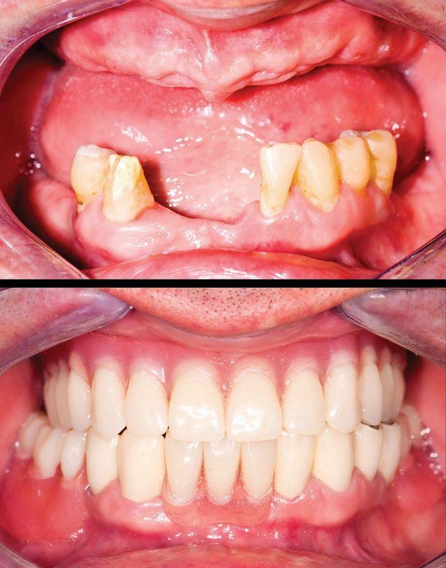 dental implants East Houston