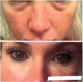 Cosmetic Dermotology | Cedar Park TX | Absolute Dermatology