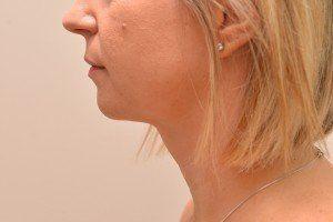 liposuction case study